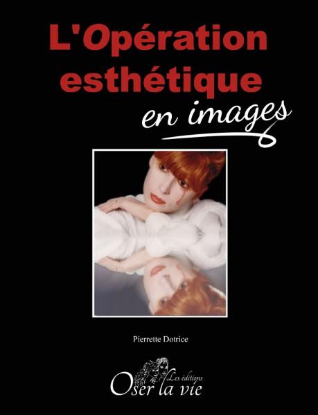 Opération esthétique en image (couverture)